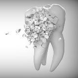 teeth techs