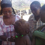 Showing the trainees the examples of signs of malnutrition in children.